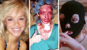 Boyfriend Has Model Girlfriend Attacked With Acid—But Her 10-Yr Challenge Photo Will BLOW You Away